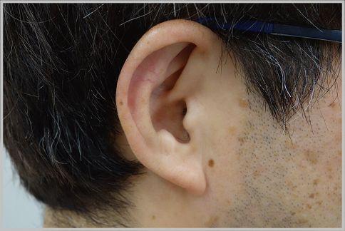 耳の臭い対策には洗顔フォームを使うのが効果的